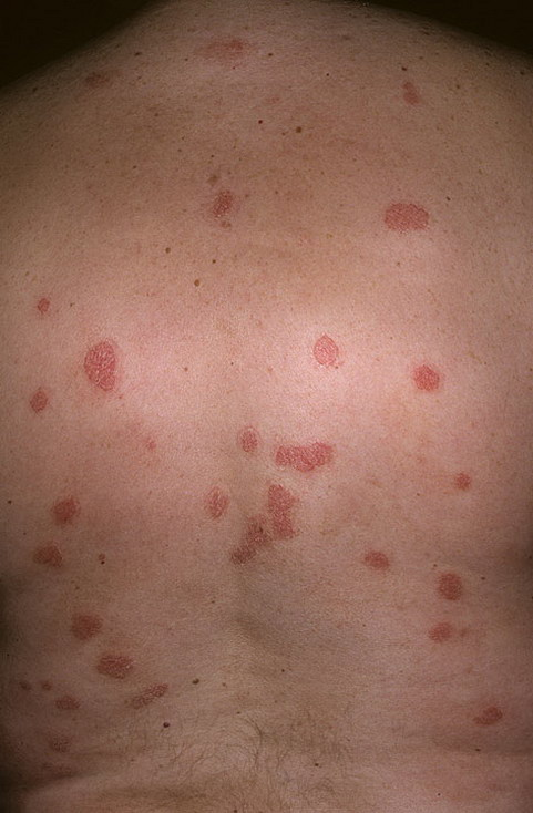 psoriaz_Chronic-Plaque-186-a-foto.jpg