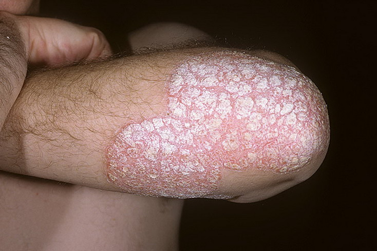 psoriaz_Chronic-Plaque-199-a-foto.jpg