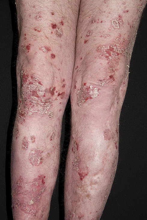 psoriaz_Chronic-Plaque-20-a-foto.jpg