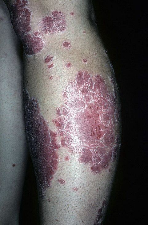 psoriaz_Chronic-Plaque-161-a-foto.jpg
